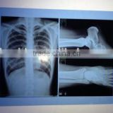 2015 new film from china laser film x-ray machine medical x ray film,medical equipments not phone