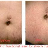 1550nm Erbium Glass Laser Treatment Machine For Wrinkles / Stretch Marks Removal
