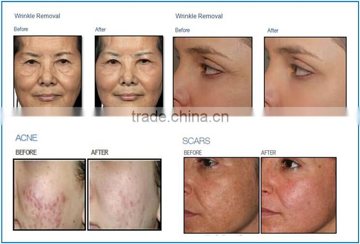 New design scar removal skin renewing stretch mark removal cream