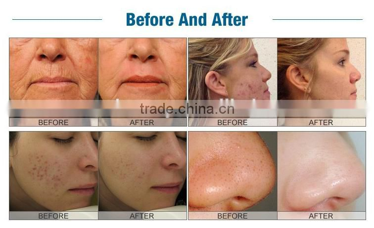 Before And After: M H701 Collagen Plus For Great Skin,skin Care,pdt Led!red