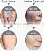 tattoo and pigment removal equipment with one years warranty-- Nd Yag laser machine.