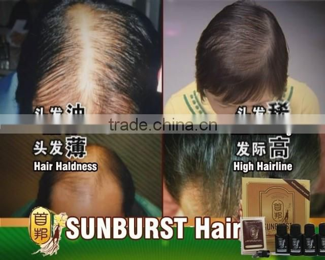 6 in One 100%Original Herbal Expert Hair Loss Treatment Products Sunburst Hair Growth Liquid