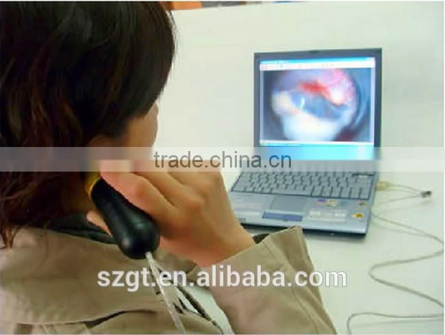 USB Mini-digital ENT Factory Price Scope/Endoscope/Otoscope Camera Medicinal Use 2000K Camera