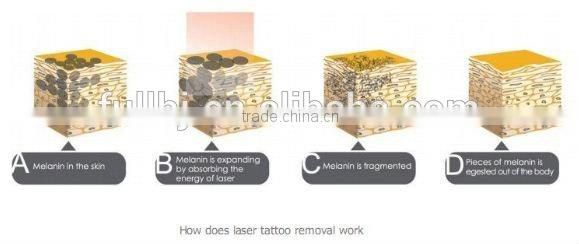 skin rejuvenation and resurfacing fine wrinkes and expressing lines q-switched nd yag laser tattoo removal