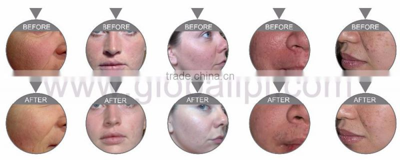 globalipl skin fatigue improvement machine acne removal oxygen jet equipment