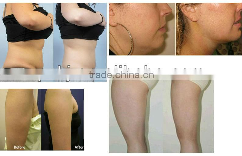 NO.1 quality!!! Velashape cellulite reduction for body sculpting treatment cost