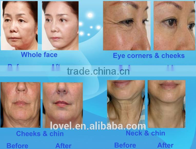 Portable High Frequency Face Machine Alibaba Trade Assurance