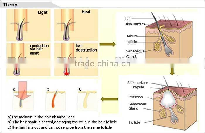 OPT/SHR fast hair removal machine with easy operation