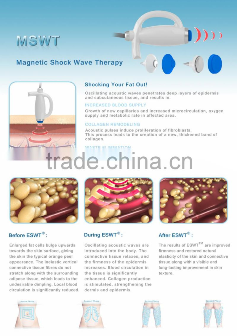 PEMF Shock Wave Therapy For Fat Loss Vibration Machines