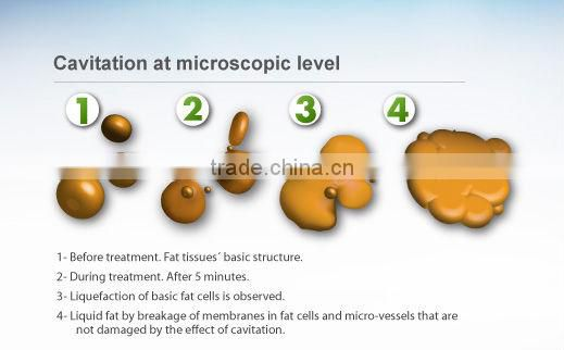 Fantastic effect 6 in 1 Cavitation slimming system with cavitation/RF/BIO slimming machine +free profeesional training
