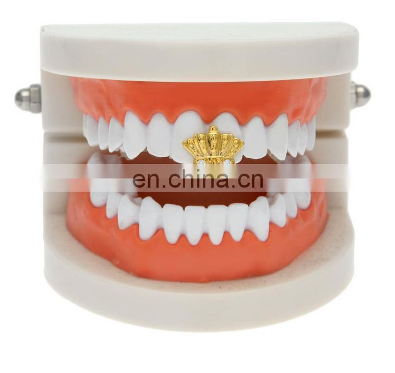 2017 Single Teeth Grill Crown Shaped Hip Hop Jewelry