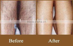 infrared hair removal, hair removal depileve wax heater
