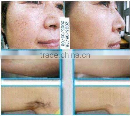 Beijing Monalisa Elight Hair removal equipment waxing