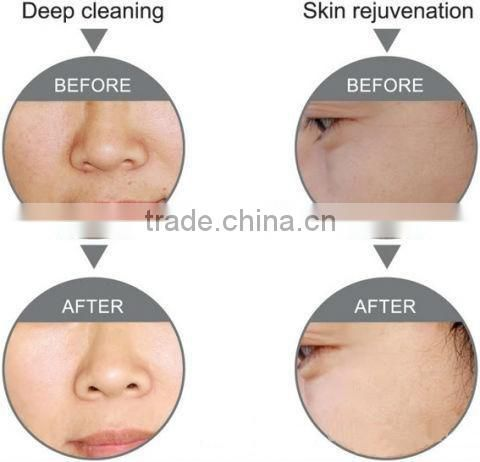 power peel microdermabrasion / water dermabrasion / Diamond Microdermabrasion Machine For Acne Scar Removal SPA7.0