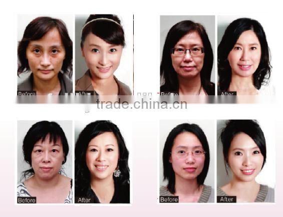 remove facial wrinkle skin care face lifting