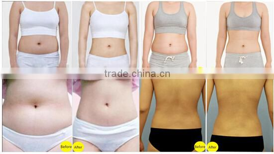 2015 weight loss high intensity focused ultrasound body slimming machine