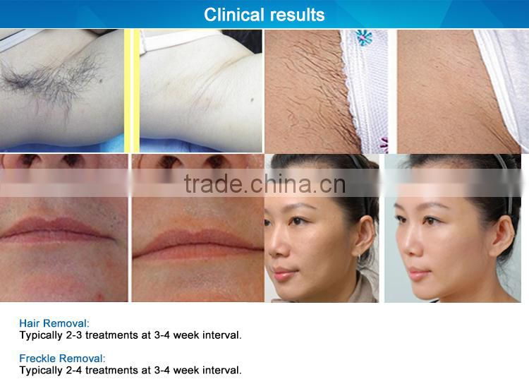 Painfree SHR elight hair removal with TUV CE approved