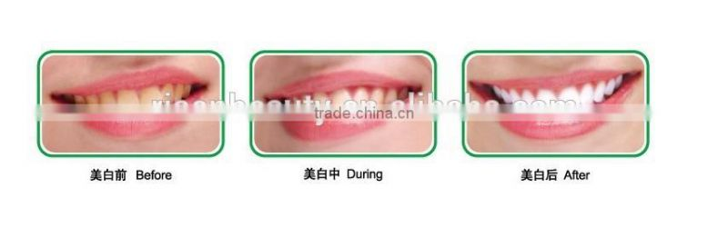 RFIC card 12pcs dental led teeth whitening equipment tooth bleaching light for beauty use
