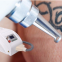 Sincoheren portable tattoo removal machine nd yag laser