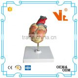 V-AM015 High Quality Medical Anatomy Plastic Life-Size Human Heart Model