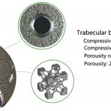 SEE Trabecular Acetabular Cup System