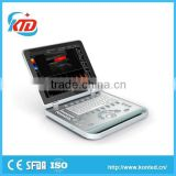 import circuit board home medical equipment with high quality