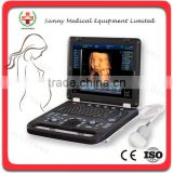 SY-A039 3D4D USG Full digital 4D Laptop Ultrasound Machine Price Portable 4D Ultrasound Machine                                                                                         Most Popular
