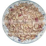 wholesale red speckle kidney bean (from china)