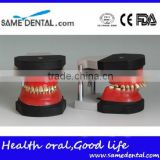 Dental orthodontic operational training model DEA-32