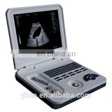 XF-30A Notebook full digital ultrasound scanner