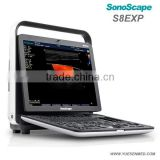Sonoscape S8Exp Portable Color Doppler Ultrasound Machine