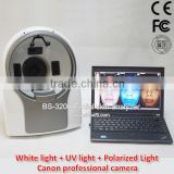 3D magic mirror skin analyser visia skin analyzer facial reveal imager skin analysis equipment