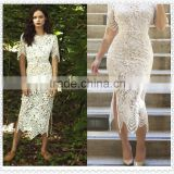 2016 new Amazon Wish clubwear women latest fashion sexy lace dress