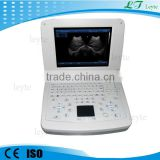 LTS-10 cheapest price portable mini laptop ultrasound machine for sale                                                                         Quality Choice