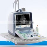 Laptop Doppler portable ultrasound machine price CE certified medical equipment used in hospital