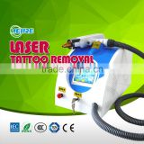 Laser Removal Tattoo Machine The Most Convenient Portable Nd: Yag Laser Tattoo Removal Machine Hori Naevus Removal