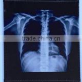 Dry thermal medical X-ray film for hospital agfa laser film fuji used in hospital from china medical equipments