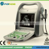 FN550 CE approved Full Digital B Mode portable portable ultrasound scanner