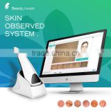 2016 portable professional mini skin analyzer software can be upgrade
