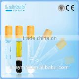 Separation Gel vacuum blood collection tube (high quality vacutainer)