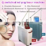 Vascular Tumours Treatment 2016 Newest Q Switched Nd Yag Mongolian Spots Removal Laser Ota Removal Machine/freckle Removal Machine