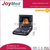 portable B mode 4D ultrasound scanner doppler function optional