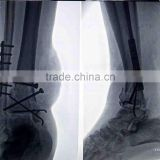 made in china medical film x-ray,x-ray image scanner,kodak thermal printers for clinic consumables