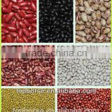 2014 Chinese types of kidney beans / bulk sales white red green blcak and speckled kidney beans