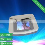 High quality vascular removal beauty machine for red blood silk reduction