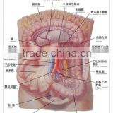 Artpaper Medical wall chart--large intestine, small intestine,and subaortic membrane