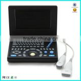 Hot Sale China factory Medical two probe/transducer connectors portable ultrasound machine for pregnancy
