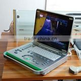 Cheap PC Based 3D Laptop Ultrasound B Scanner / Ultrasonic Equipments