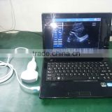 Cheapest Laptop B Mode Ultrasound Scanner