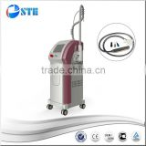 STE Factory price 1064 nm 532nm nd yag laser for tattoo removal&birthmark&nail fungus&black doll